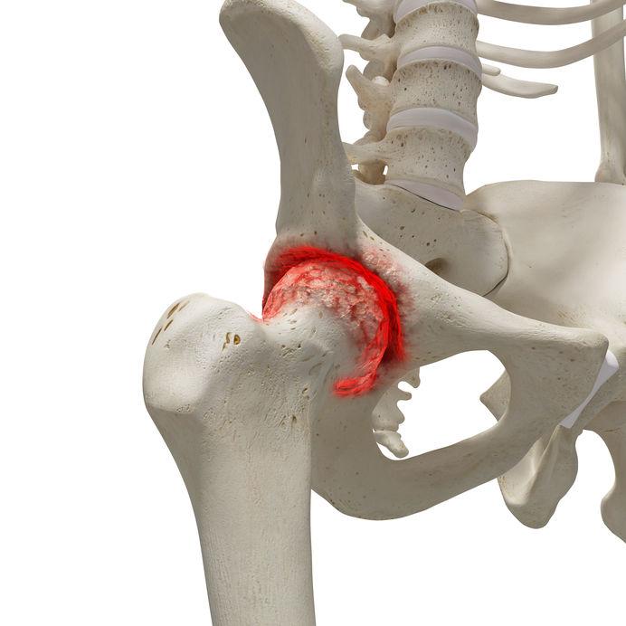 Csípő ütközési szindróma | abonyikezilabda.huán István ortopéd sebész praxisa