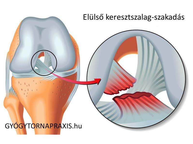 a térdszalagok relaxációs kezelése a boka derékének hatékony kezelése